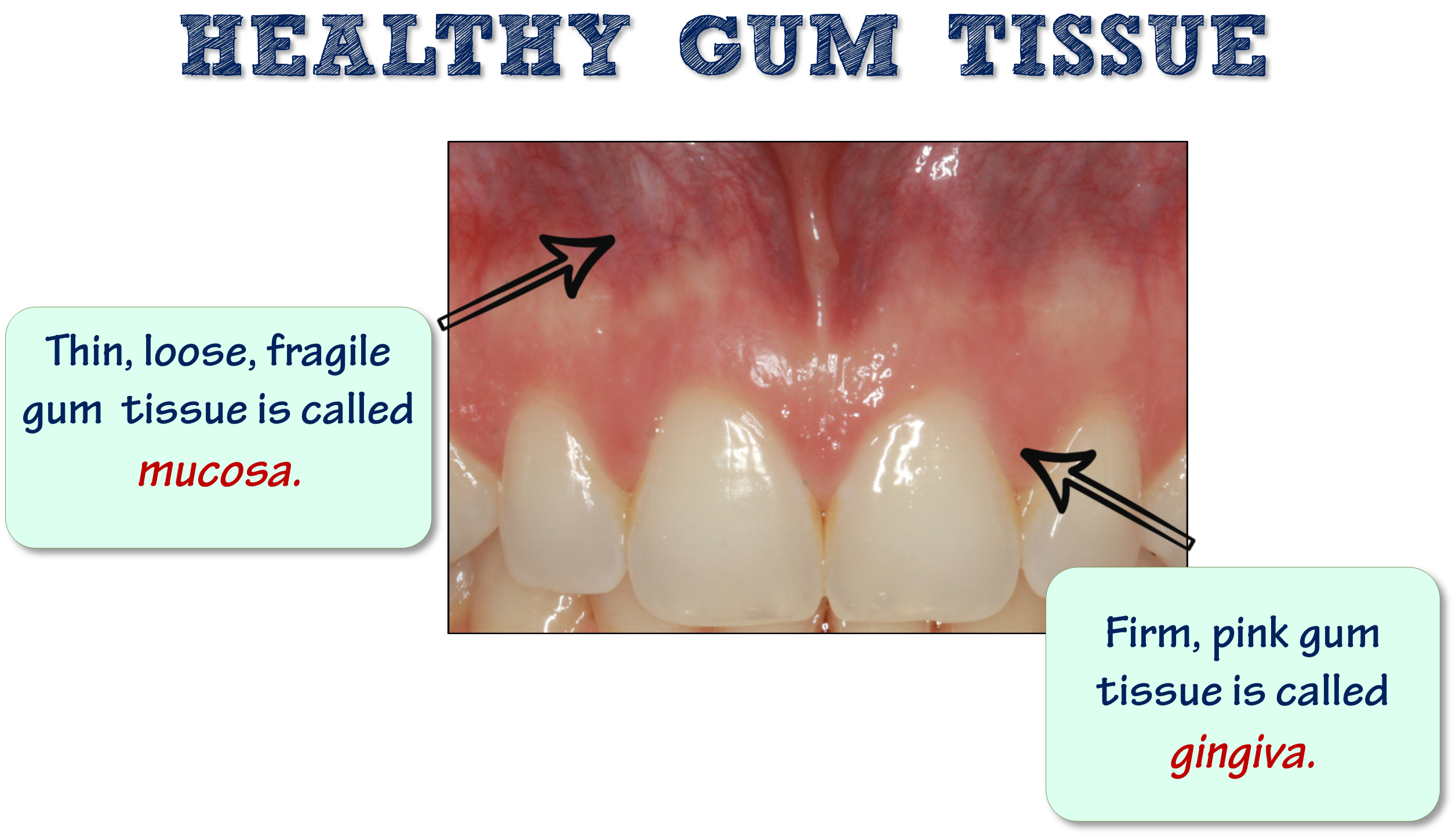Healthy gum tissue free of periodontal disease