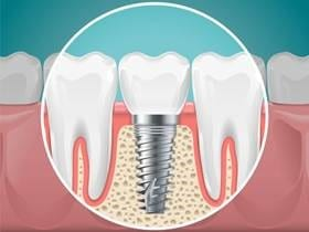 Dental Implants – An Overview of the Process