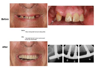 Implant B-A 1
